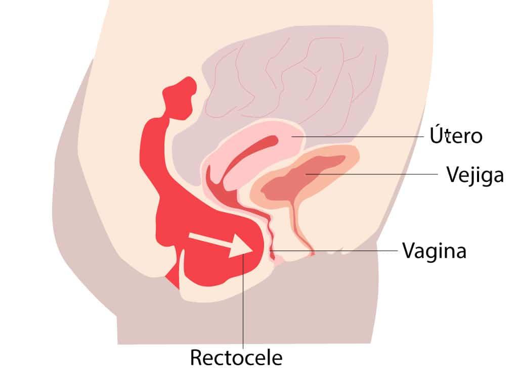 Prolapso vaginal posterior